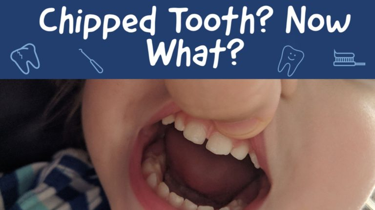 small chip on front tooth